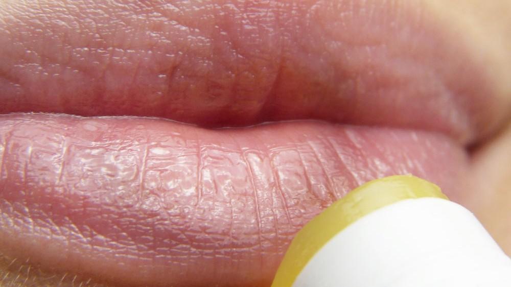 granitos blancos en la cara adultos