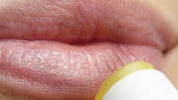 Por qué me salen pequeños puntos blancos en los labios