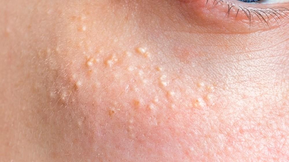 Cómo Eliminar Los Granos De Grasa De La Cara Quistes De Milium