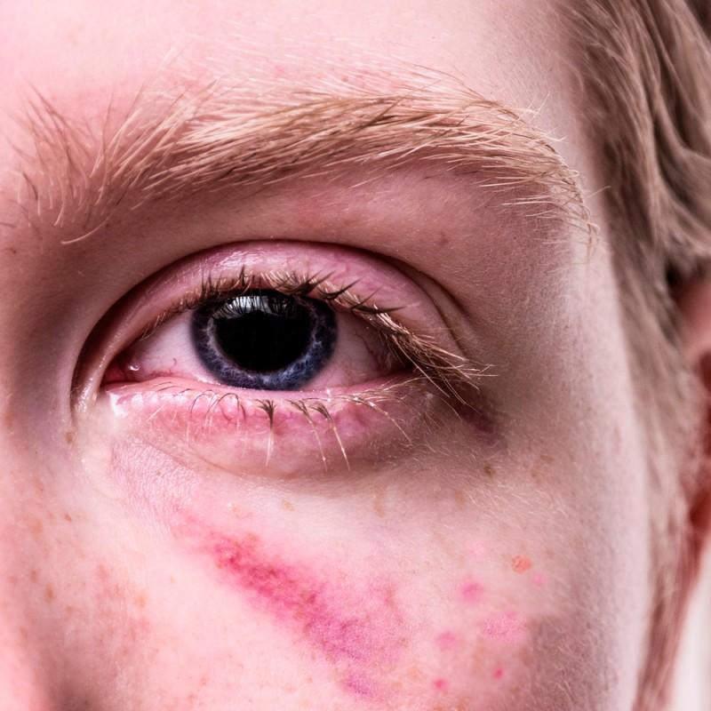Qué son esos puntos rojos en la piel: petequias