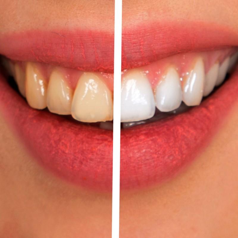Por qué tengo los dientes amarillos y cómo blanquearlos