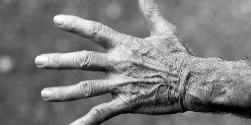 manos arrugadas
