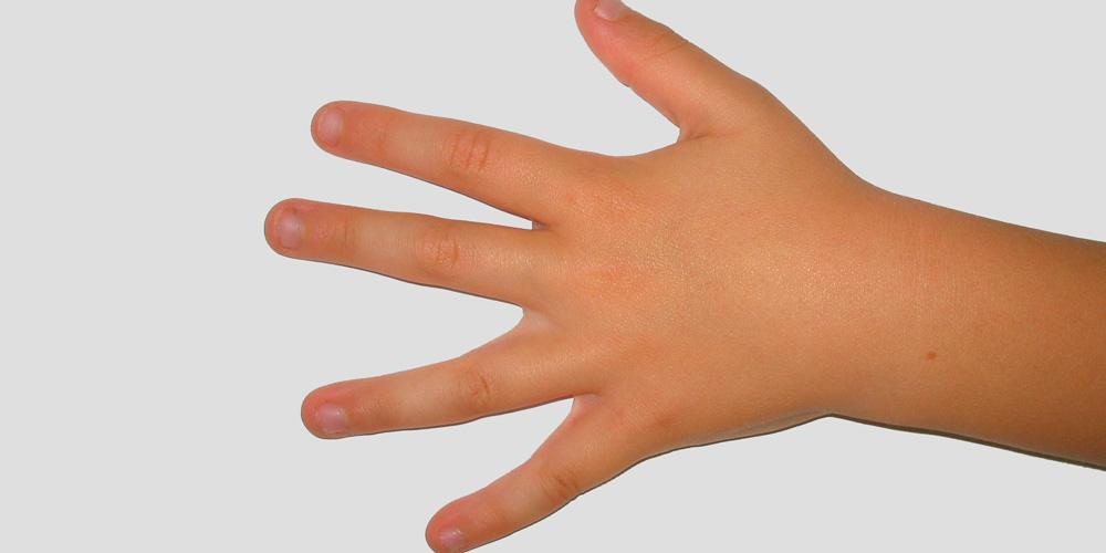 Dejar de morderse las uñas