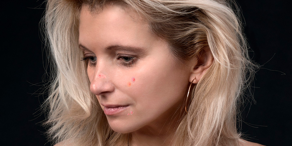 acne en la menopausia