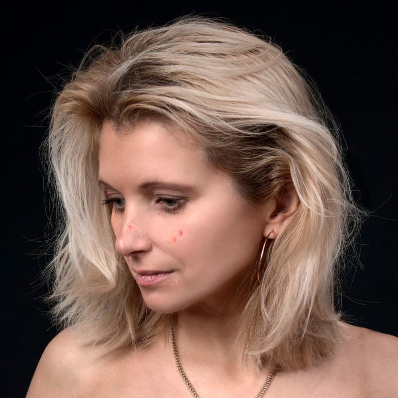 Cómo acabar con el acné en la menopausia