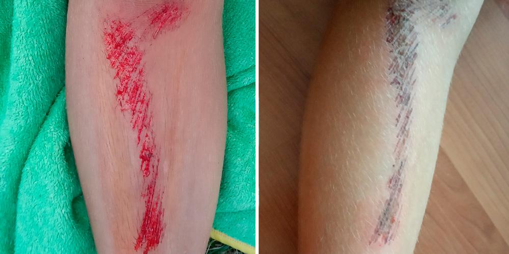 Cómo curar un arañazo o raspadura en la piel