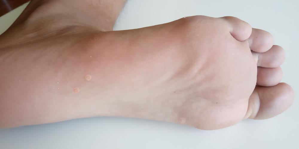 papiloma en los pies