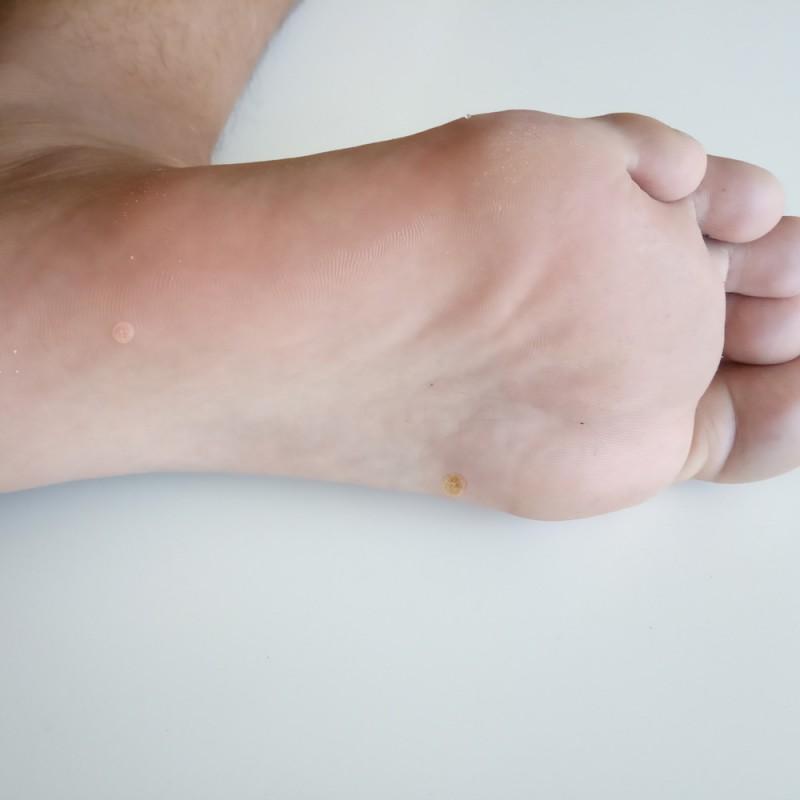 Papiloma en los pies: ¿qué causa esta infección y cómo tratarla?