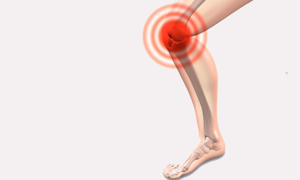 diferencias entre la artrosis y la artritis