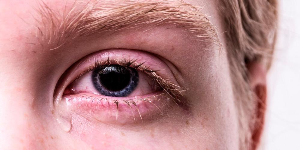 cuerpo extraño en el ojo
