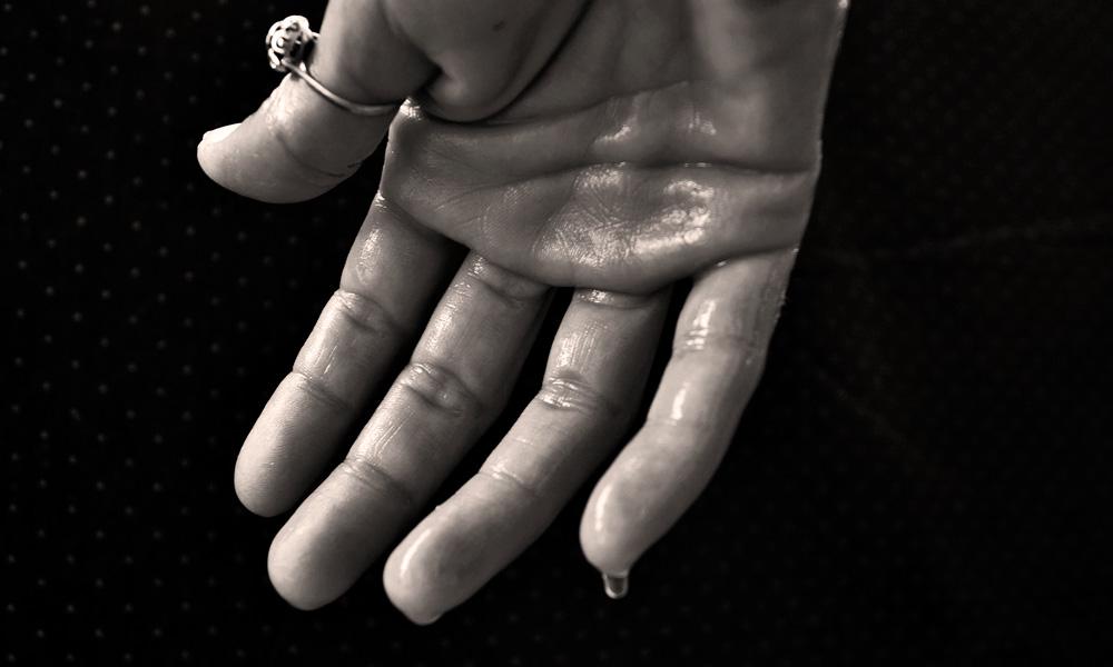 por qué me sudan las manos, hiperhidrosis palmar