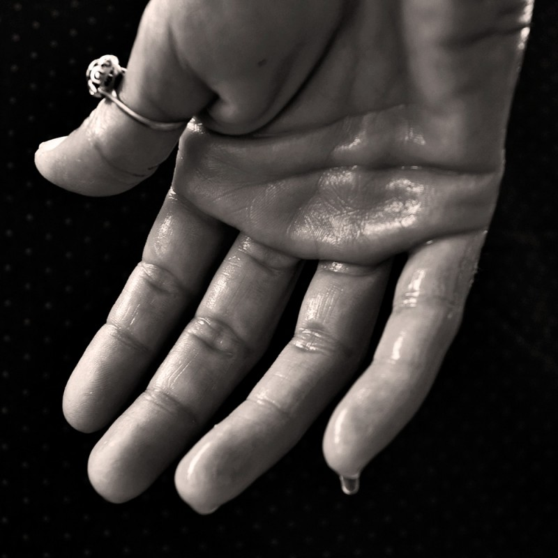 ¿Por qué me sudan las manos? Causas y remedios para la hiperhidrosis palmar