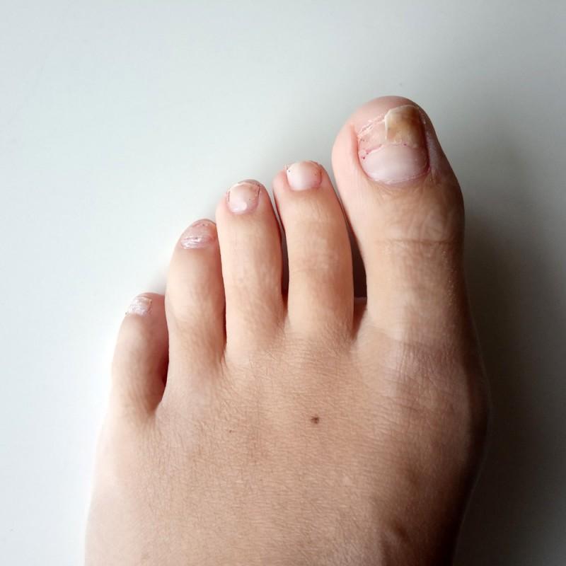 Uña del pie rota o desprendida: ¿qué hacer?