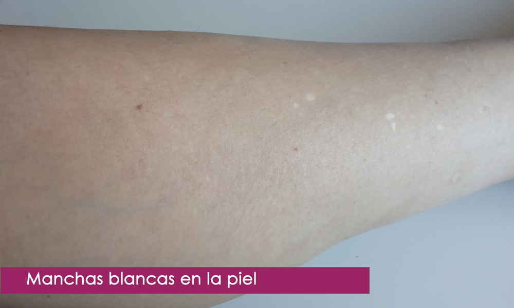 manchas blancas en la piel, qué son