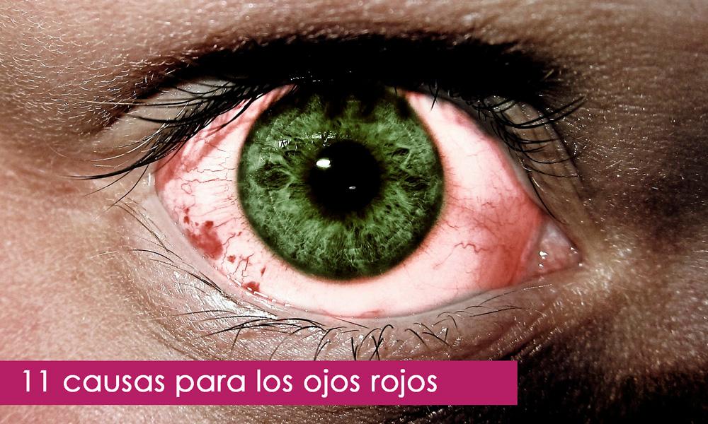 tratamiento para los ojos rojos