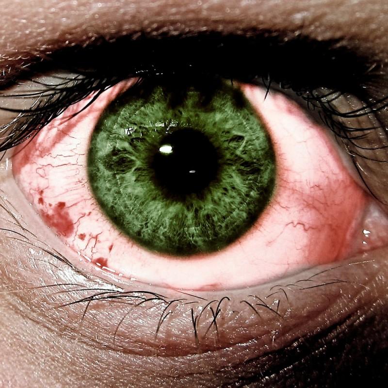 Ojos rojos: ¿cuáles son las causas y qué remedios pueden tratarlos?