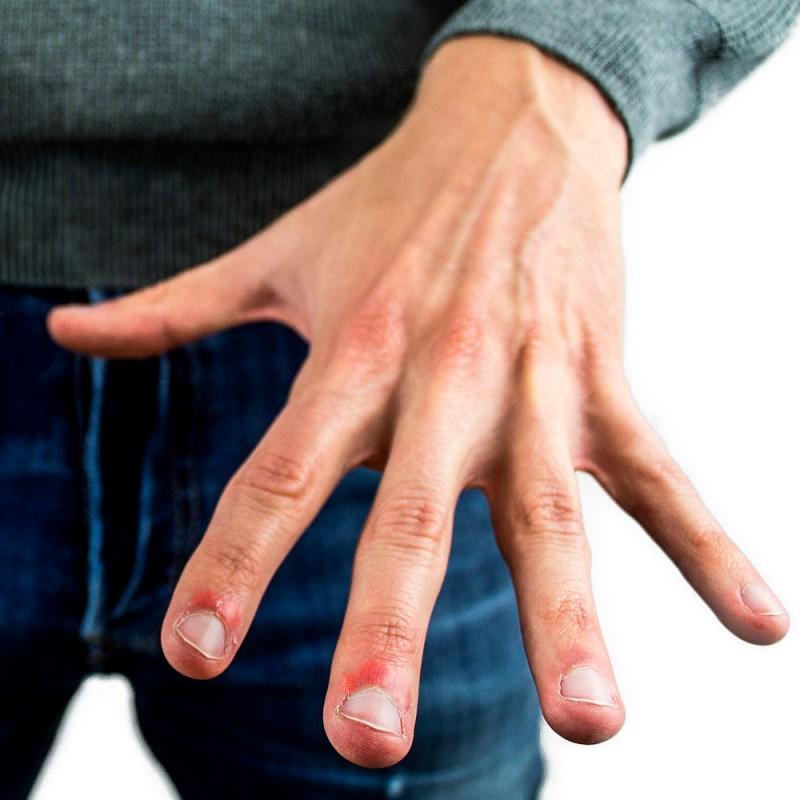 Paroniquia: ¿qué causa la infección en las uñas y cómo solucionarlo?