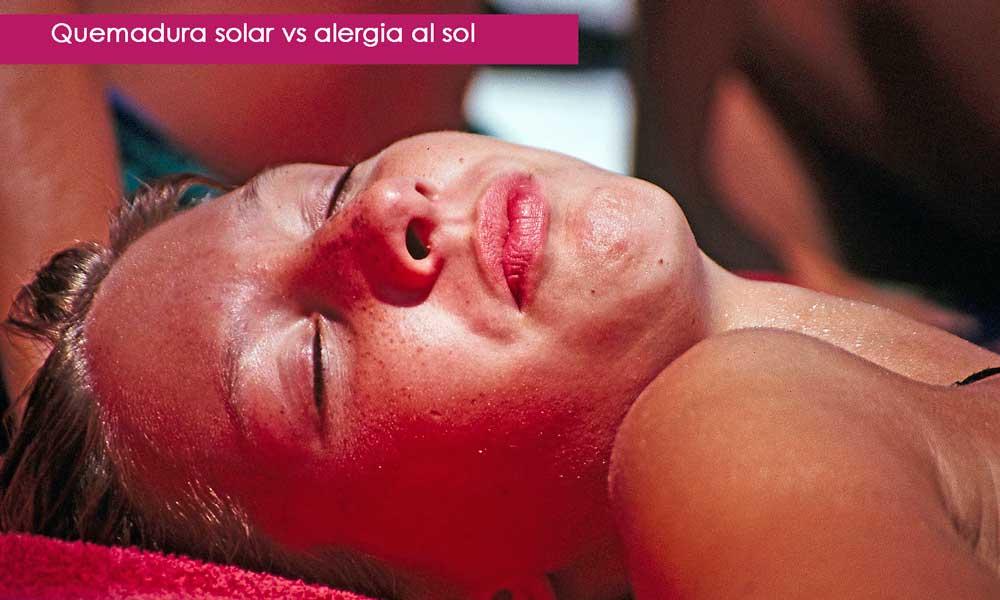 quemadura solar vs alergia al sol, diferencias