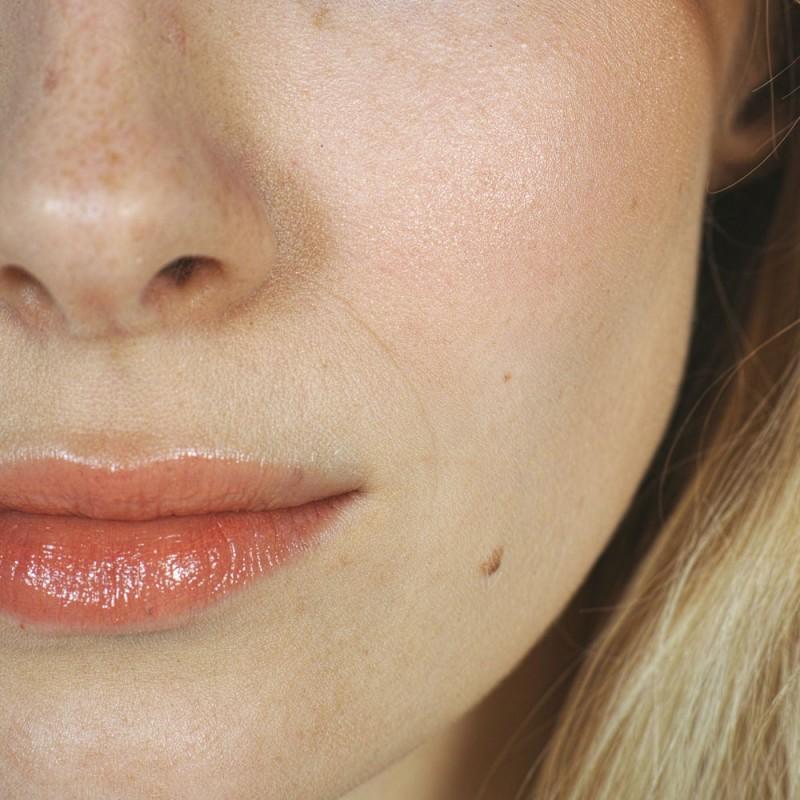 Por qué salen lunares en la piel. Qué son los lunares, qué los causan y cuándo son peligrosos