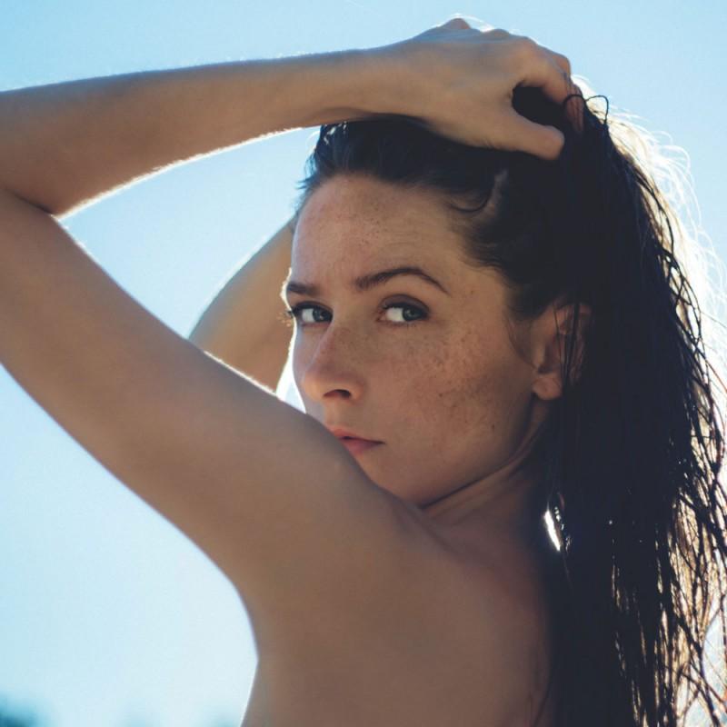 Cómo evitar la aparición de acné o granos al usar protector solar