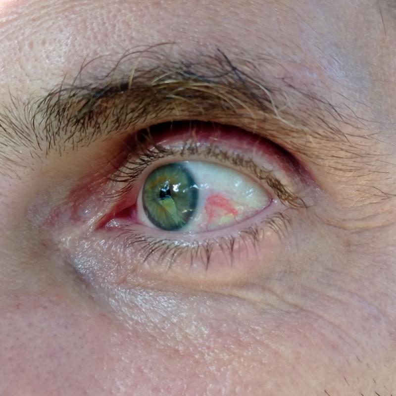 Derrame en el ojo: ¿por qué ocurre y qué hacer?
