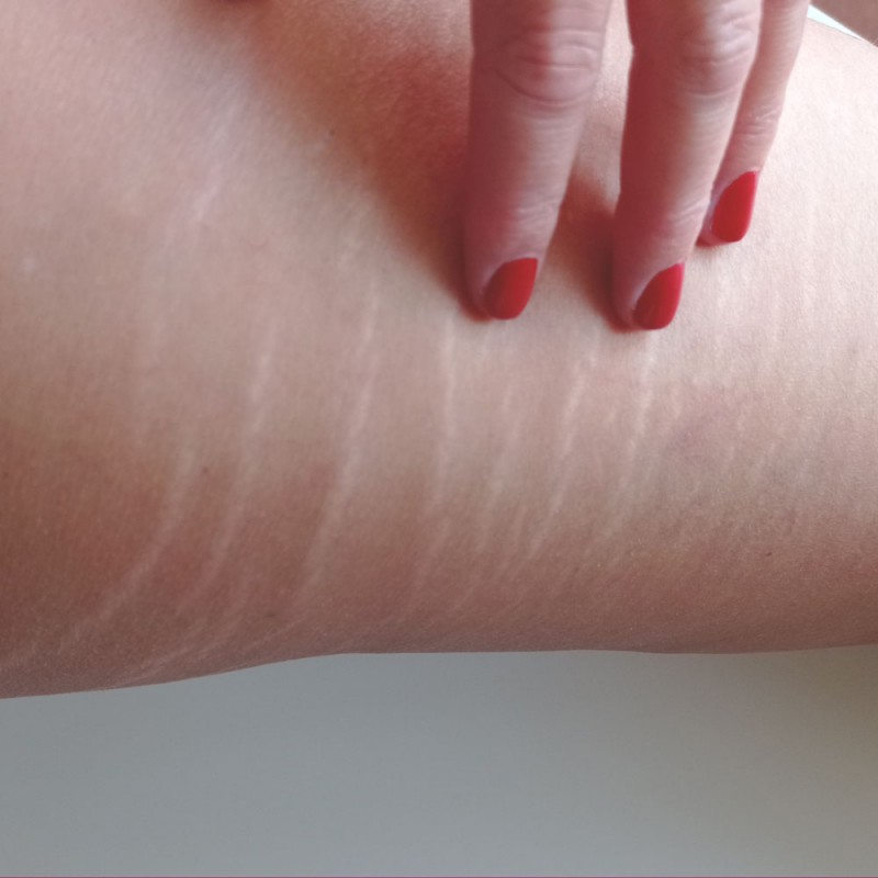 Estrías en la piel: ¿por qué es tan difícil eliminarlas?