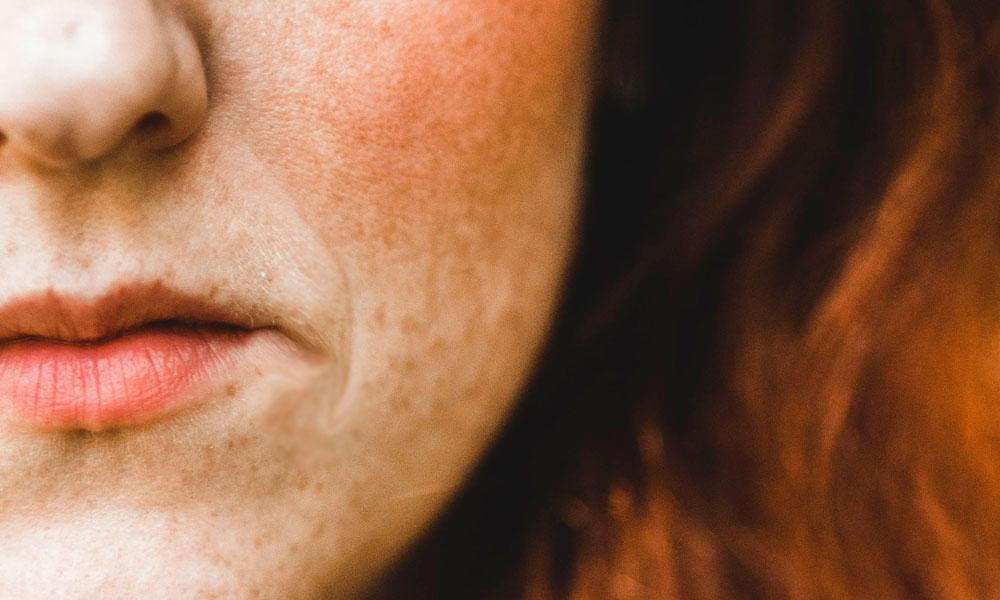 como elevar la comisura de los labios