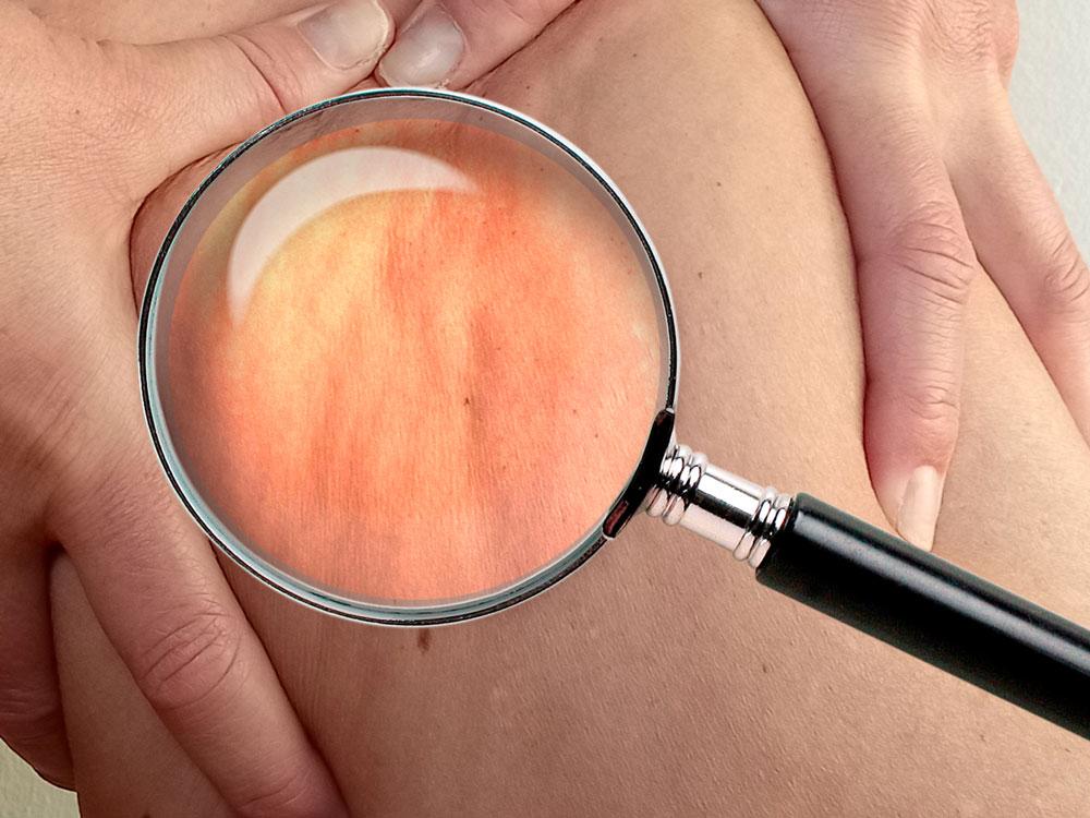 cómo eliminar la celulitis de muslos, glúteos y abdomen