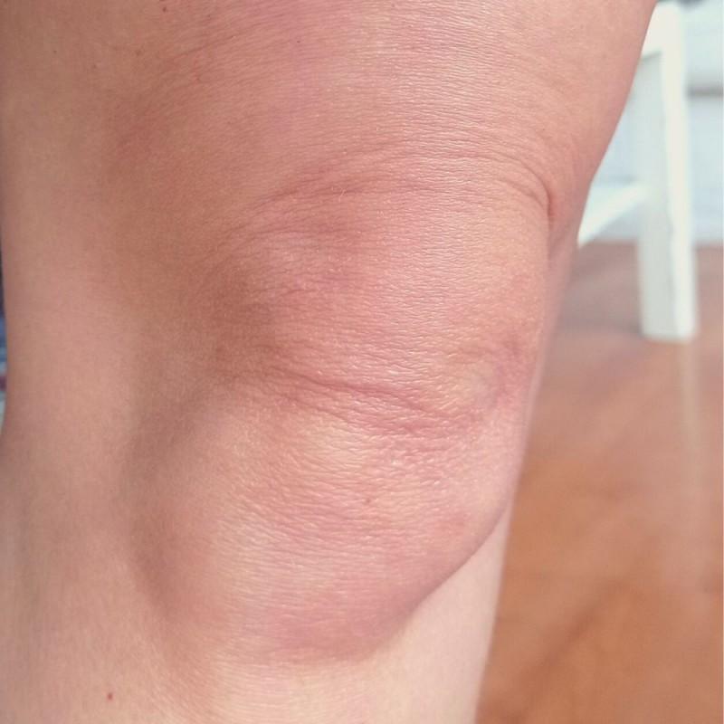Cómo prevenir las arrugas en las rodillas (y tratamientos para eliminarlas)