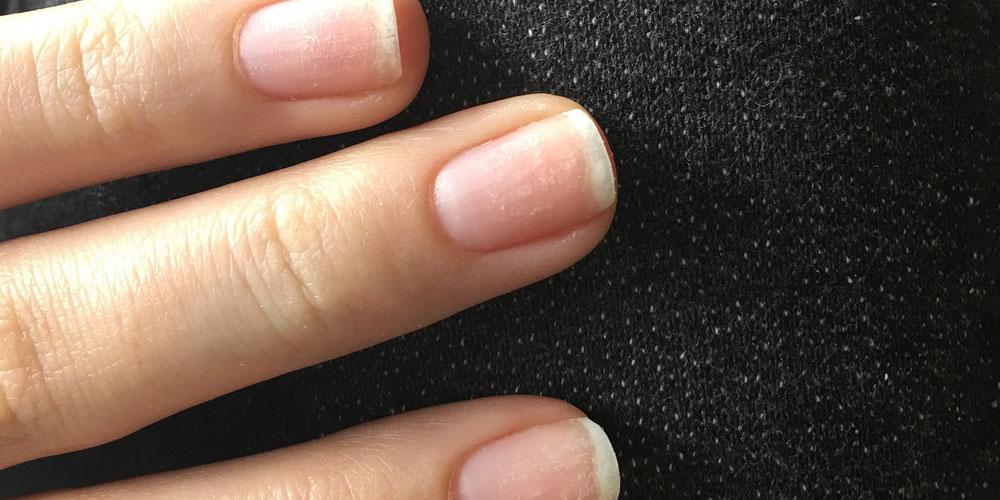 tengo las uñas frágiles y partidas