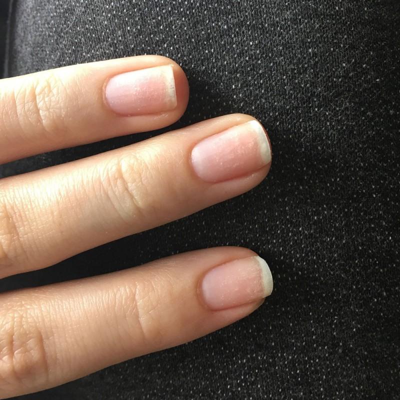 Qué hacer si tengo las uñas frágiles. Soluciones para uñas partidas