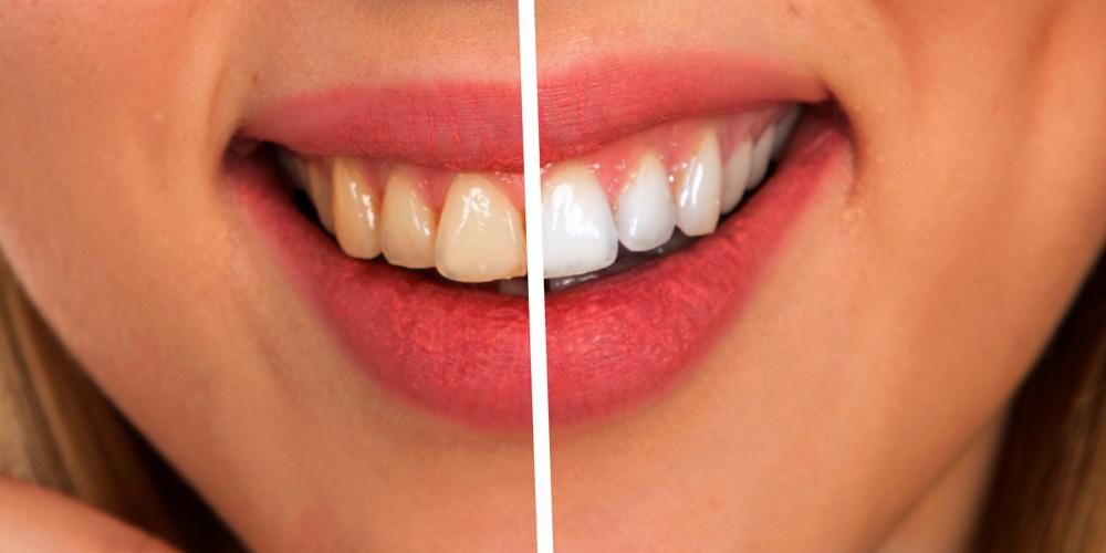 alimentos que tiñen los dientes