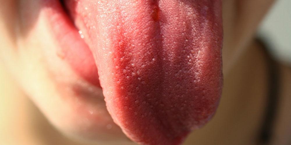 Granos en la lengua