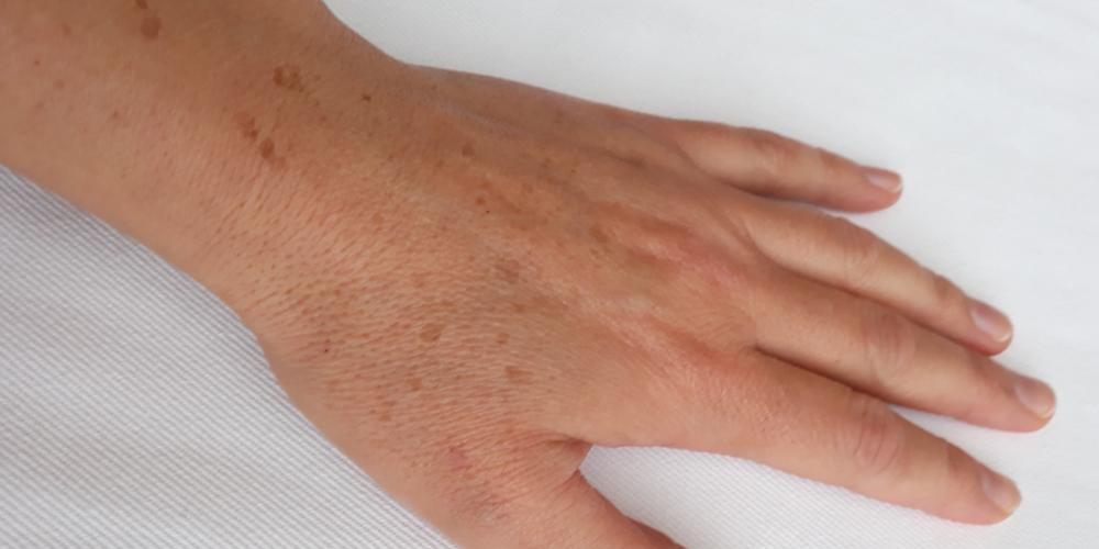 Eliminar las manchas de las manos