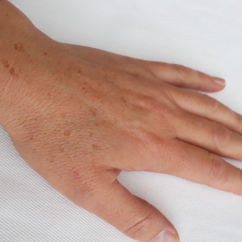 Cómo eliminar las antiestéticas manchas de las manos. Remedios caseros