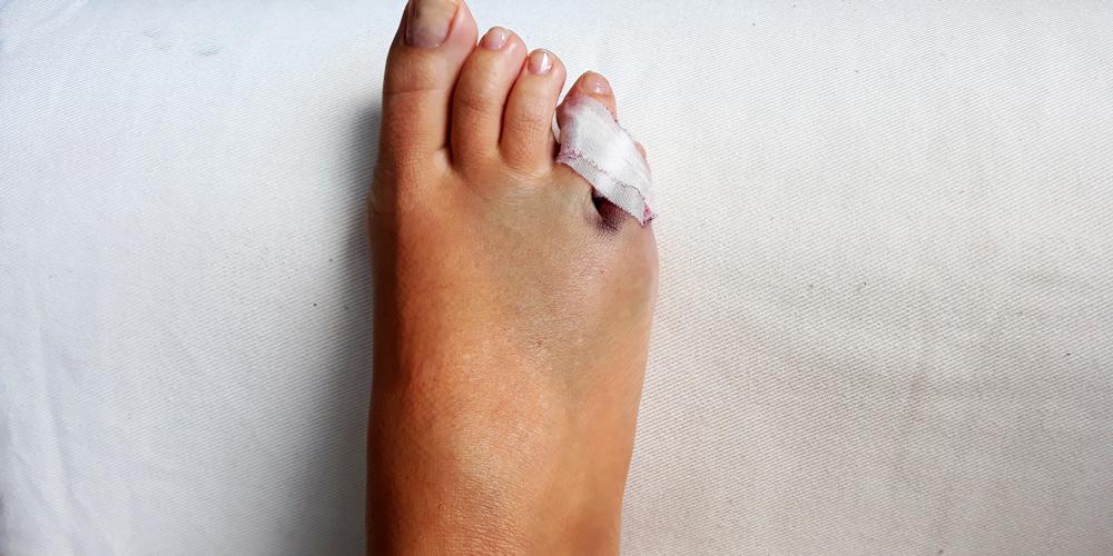 rotura dedo meñique del pie
