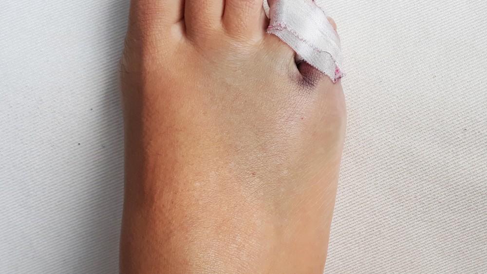 golpe en el dedo del pie hinchado