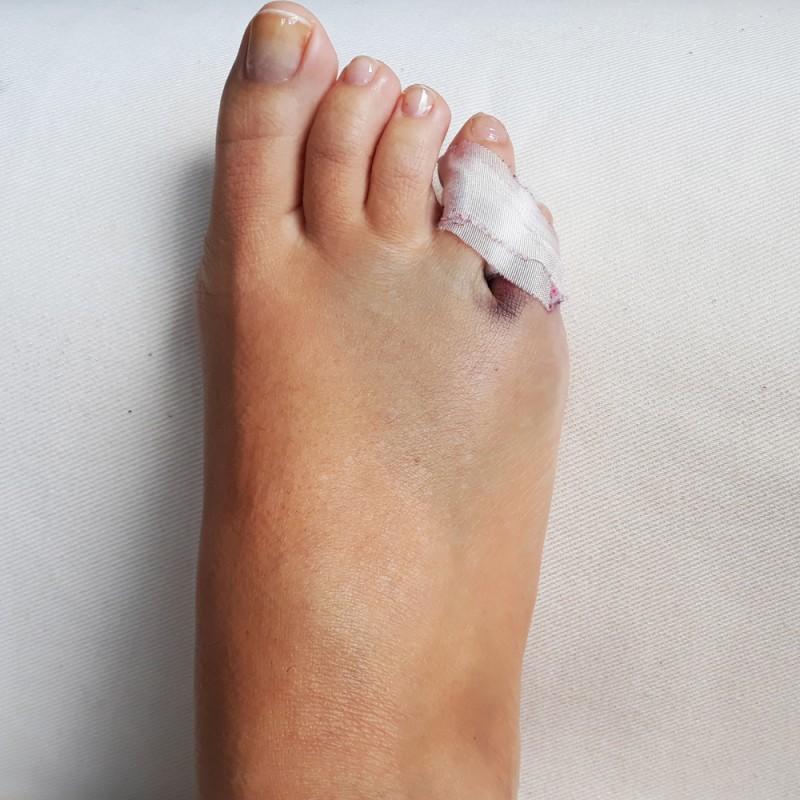 Fractura del dedo meñique del pie: síntomas y tratamiento
