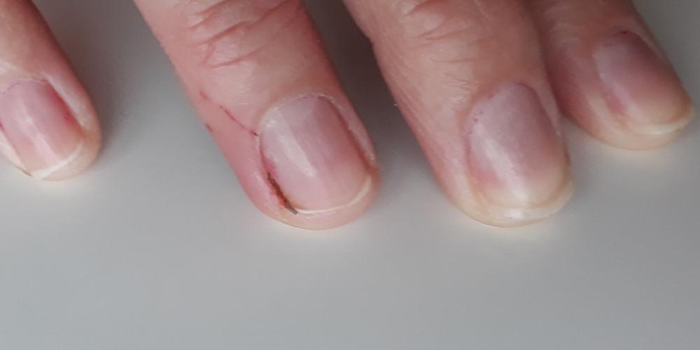 como sacar una astilla del dedo que no se ve