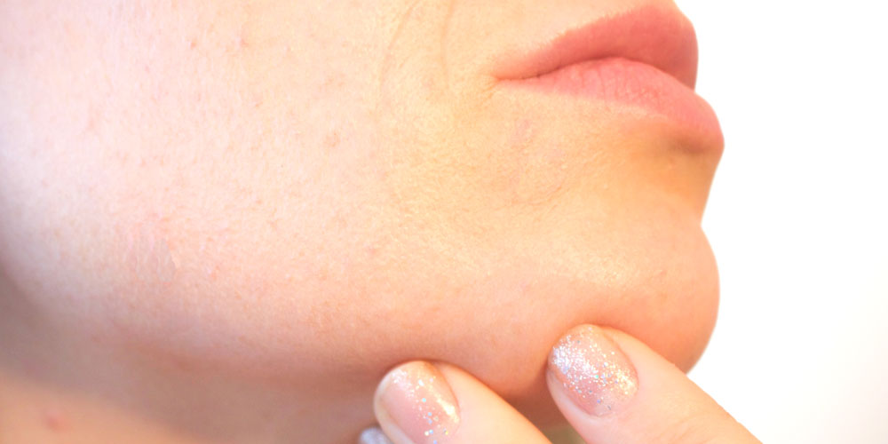 Vello en la barbilla en mujeres