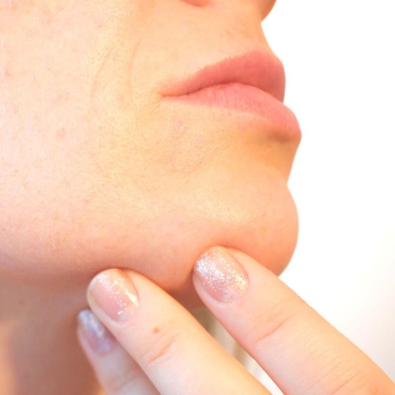 Vello en la barbilla en mujeres. Por qué de repente aparecen pelos en la cara.